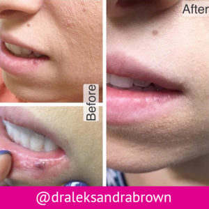 Before and after photographs showing the removal of an angioma from a patient's lip