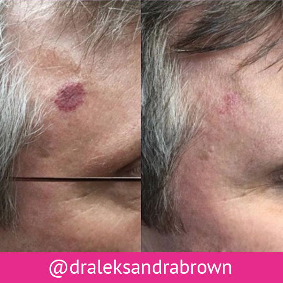 Before and after photos of spider angioma removal
