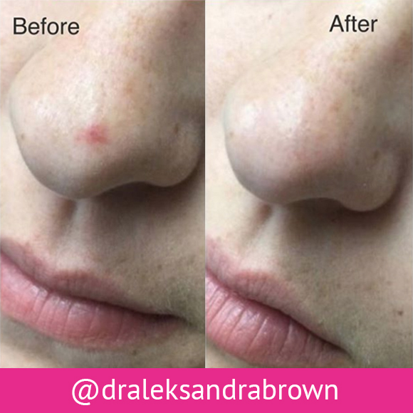 Before and after photos of pulsed dye laser treatment