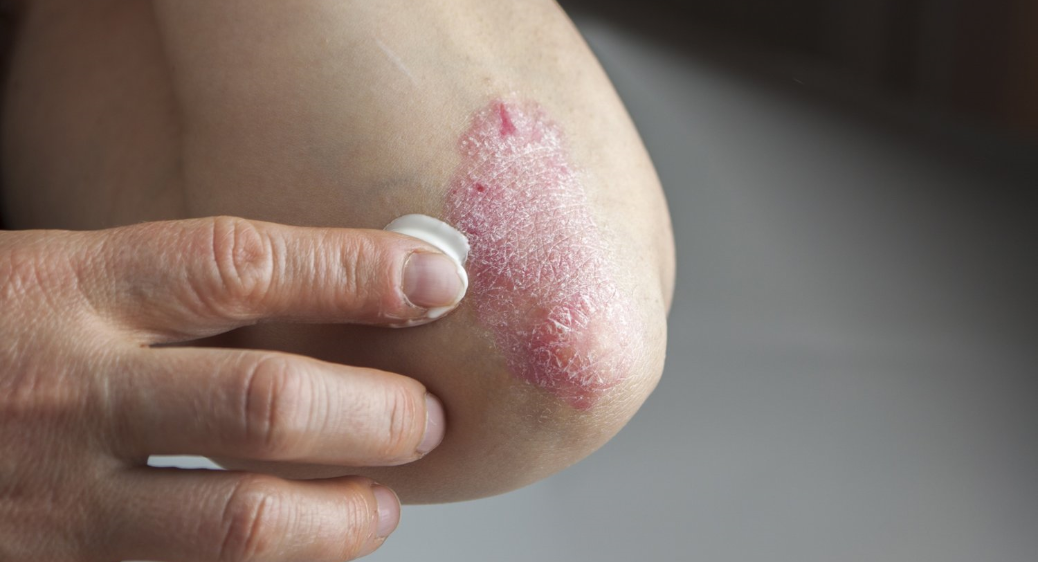 A photo of a person applying lotion to a rash.