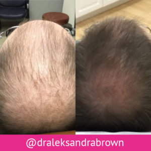Before and after photographs of a man's head, showing increased hair coverage in the second.