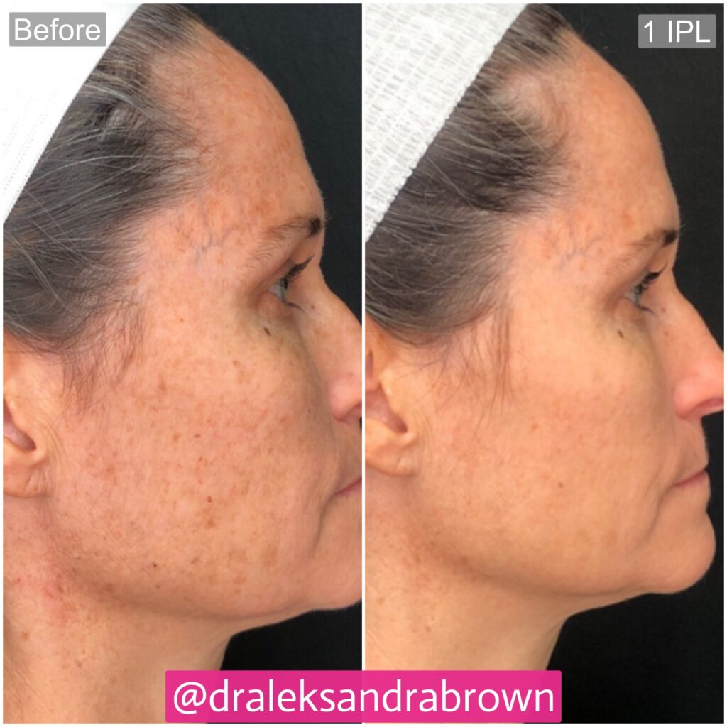 A before and after photo of brown spot removal