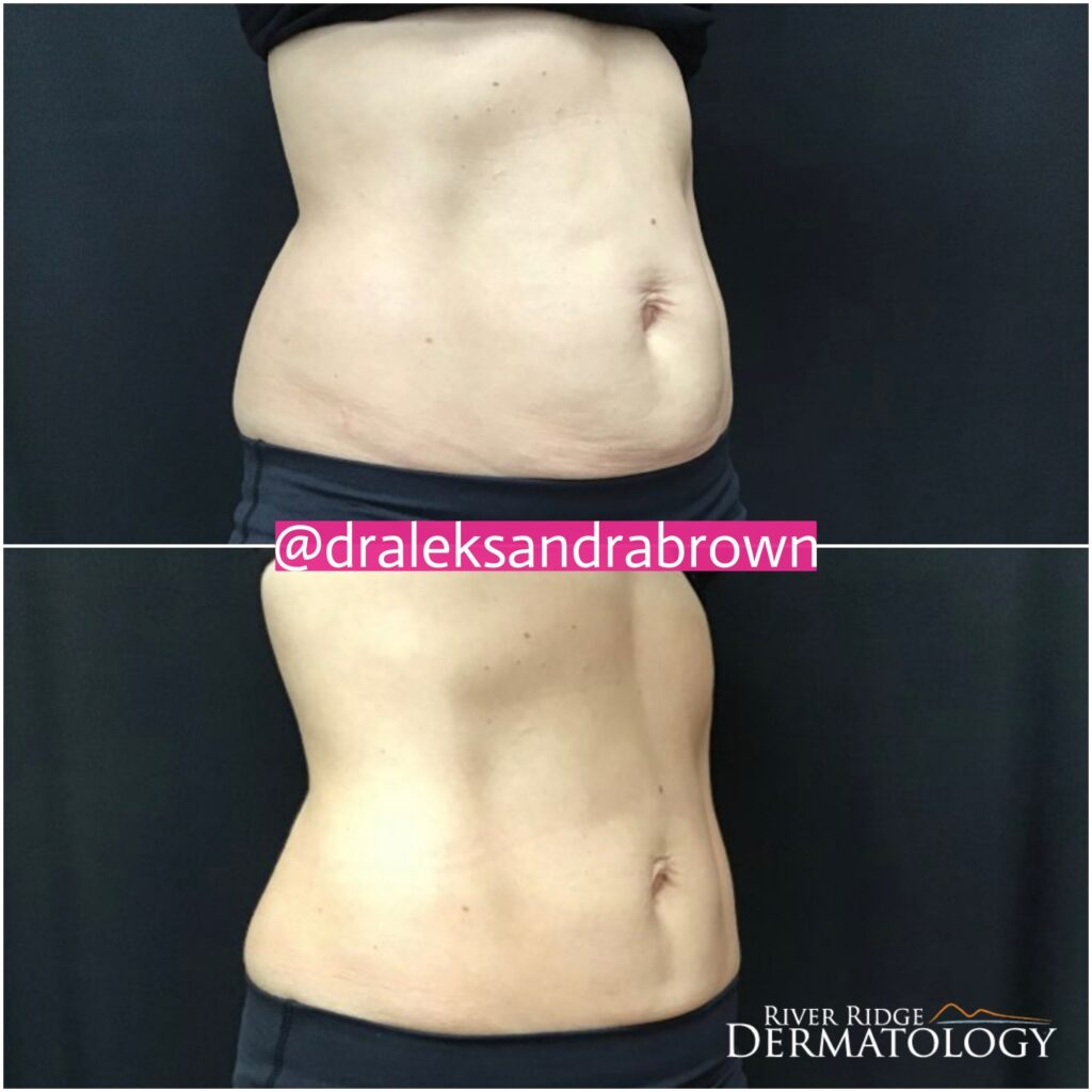A before and after photo of body contouring