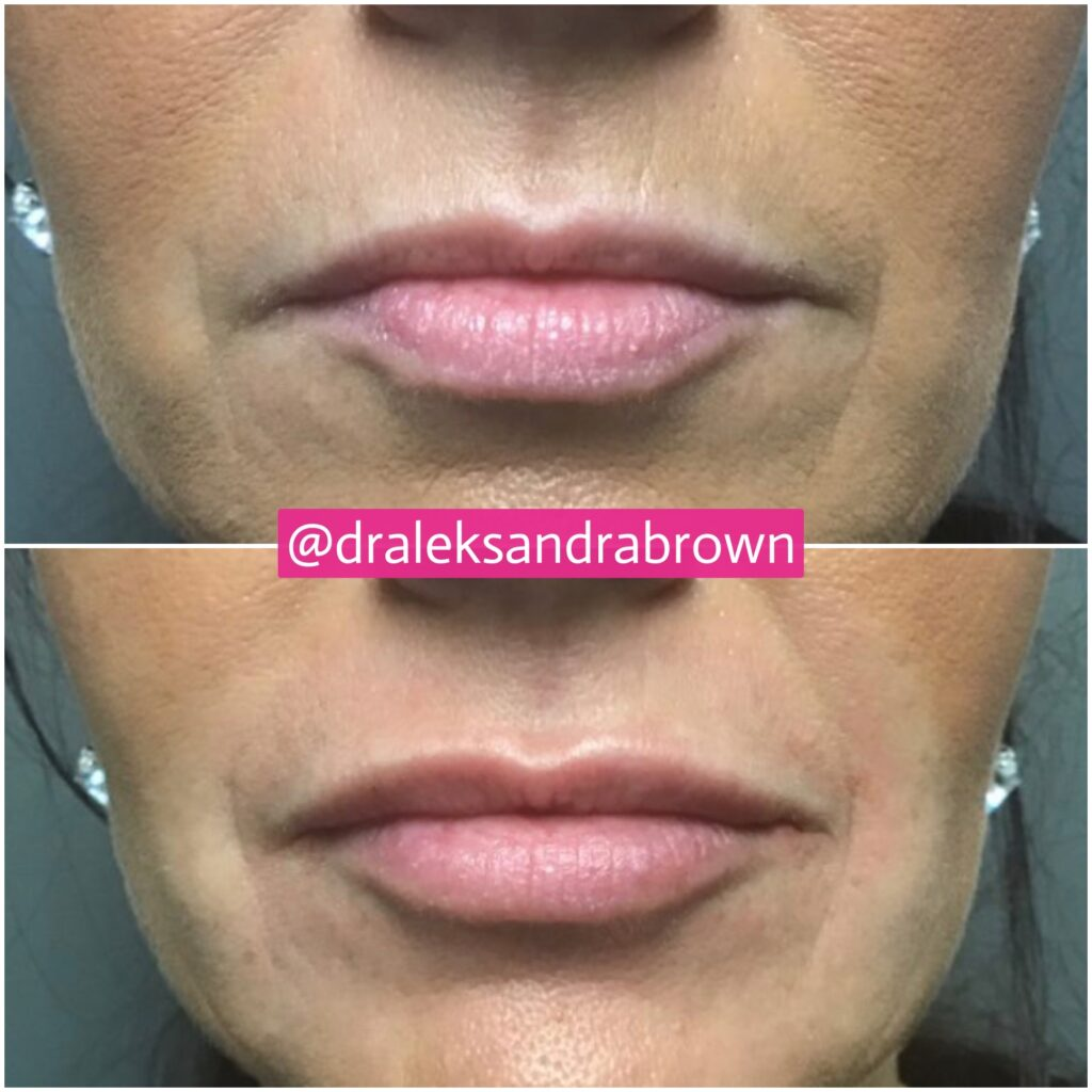 A before and after photo of injectables