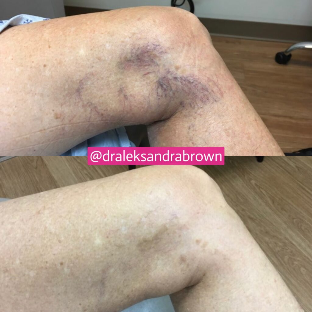 A before and after photo of vein therapy